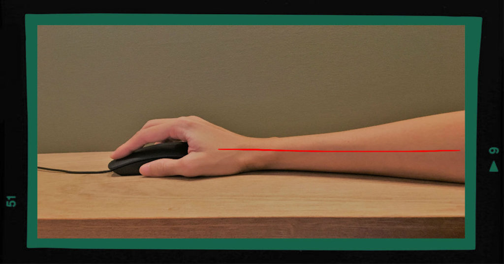 腱鞘炎 予防