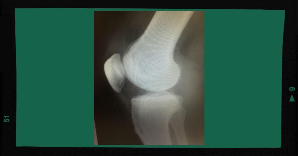 膝の痛み 治療