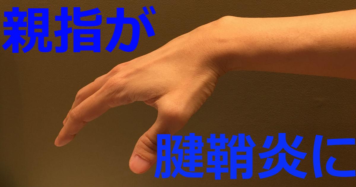 親指の付け根が腱鞘炎になったときのベストな対処法3選