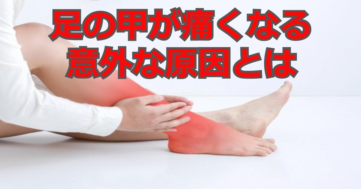 足の甲が痛い 原因